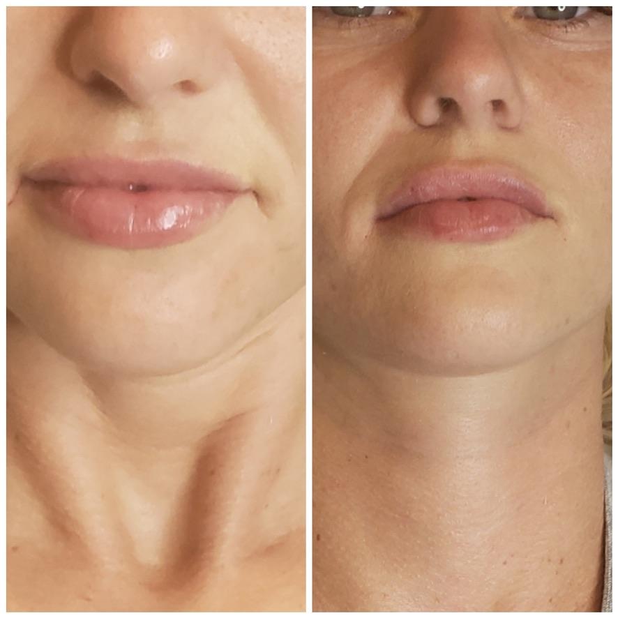Cierra Lips 1