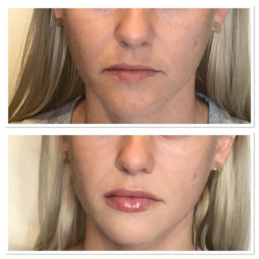 Cierra Lips 2