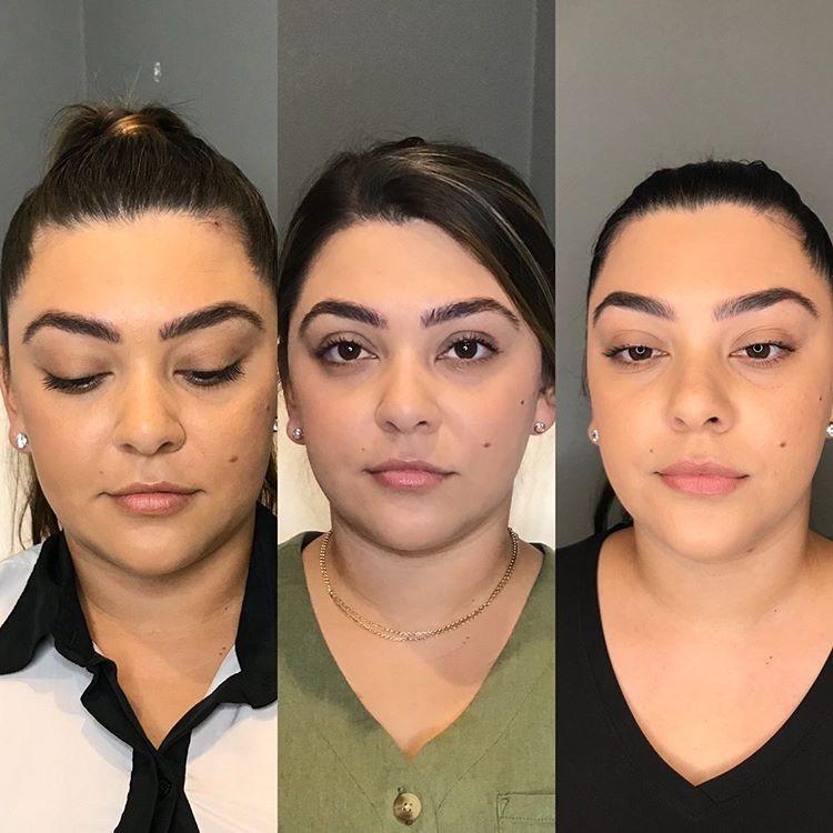 Kayla Suarez Kybella 3 Front