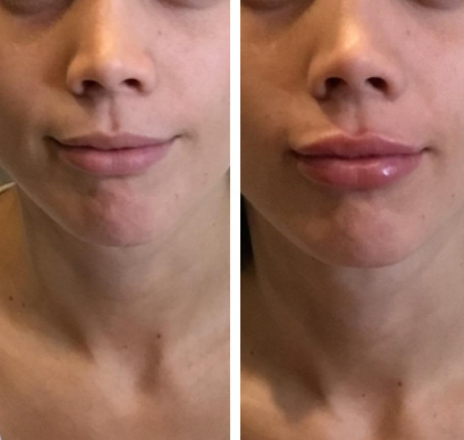 Sarah Schneider Lips